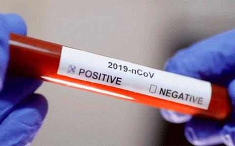 Coronavirus en Argentina: Confirmaron un nuevo muerto y 75 nuevos casos